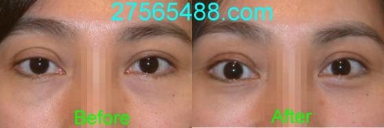 右图是眼球结构示意图